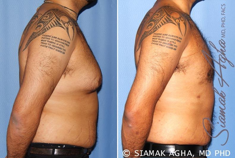 Orange County Newport Beach Male Breast Reduction 7 Right View