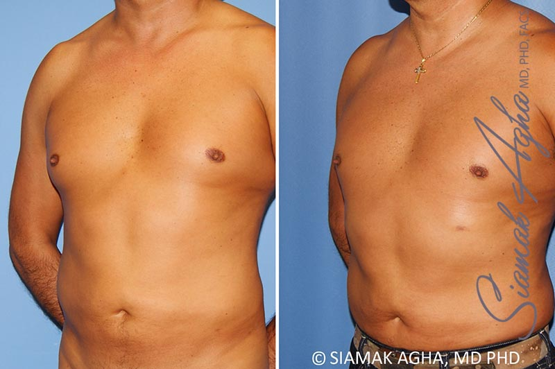 Orange County Newport Beach Male Breast Reduction 8 Front Left View