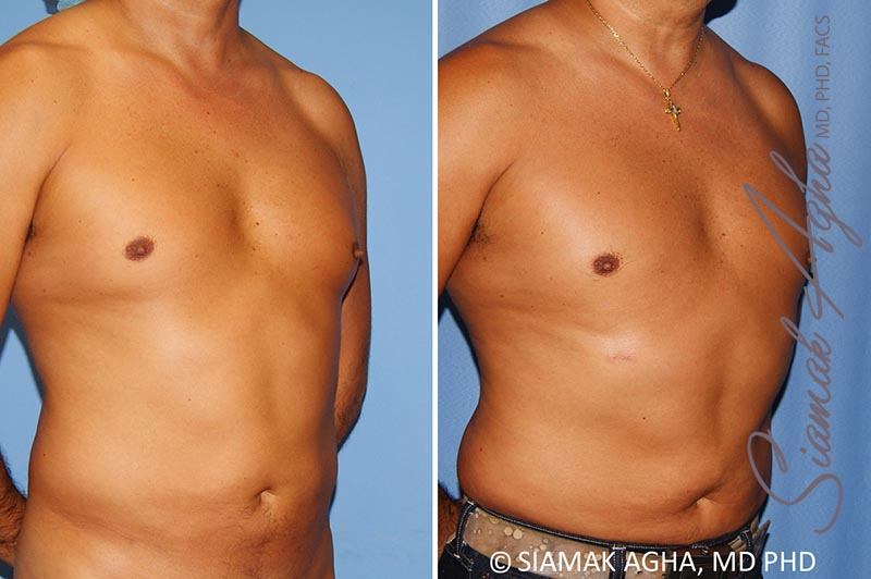 Orange County Newport Beach Male Breast Reduction 8 Front Right View