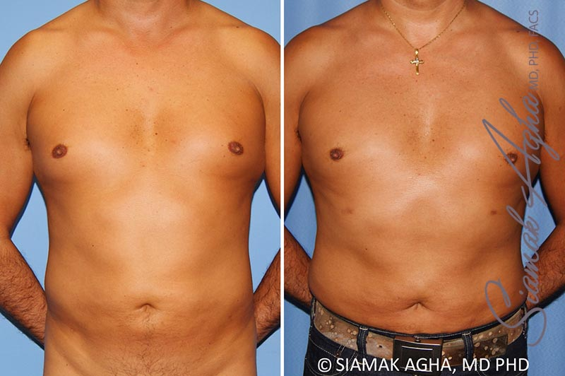 Orange County Newport Beach Male Breast Reduction 8 Front View