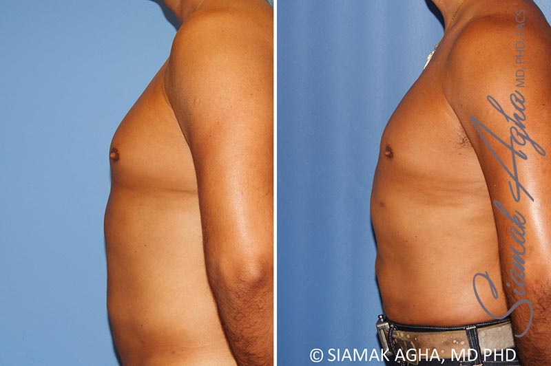 Orange County Newport Beach Male Breast Reduction 8 Left View