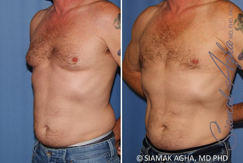 Orange County Newport Beach Male Breast Reduction 9 Front Left View