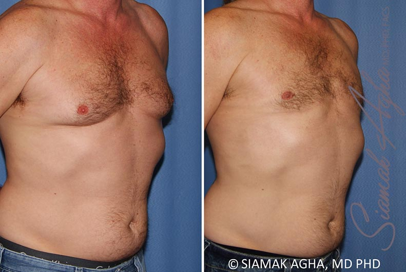 Orange County Newport Beach Male Breast Reduction 9 Front Right View