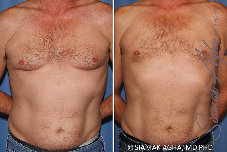 Orange County Newport Beach Male Breast Reduction 9 Front View