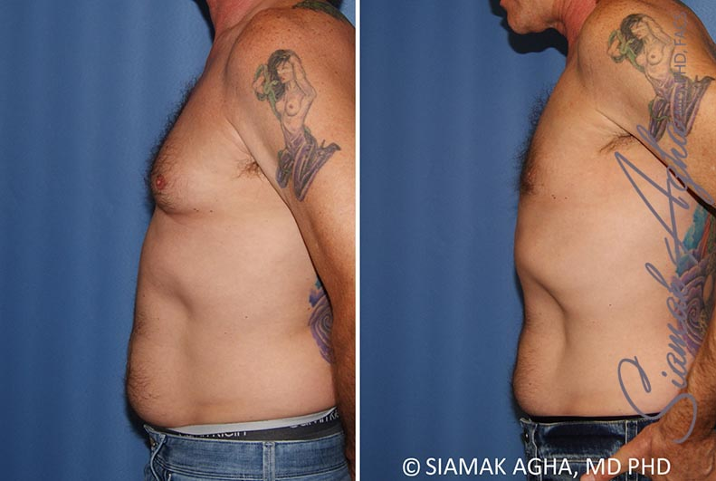 Orange County Newport Beach Male Breast Reduction 9 Left View