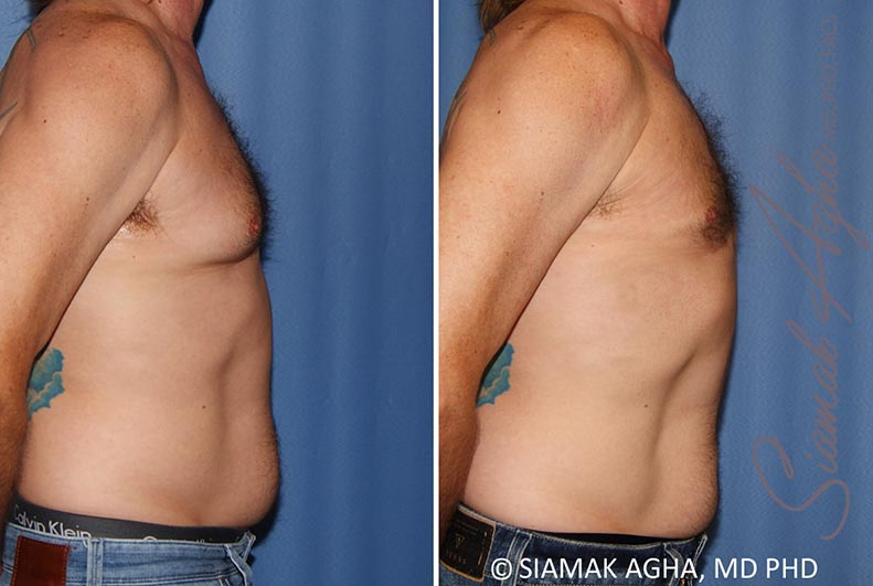 Orange County Newport Beach Male Breast Reduction 9 Right View