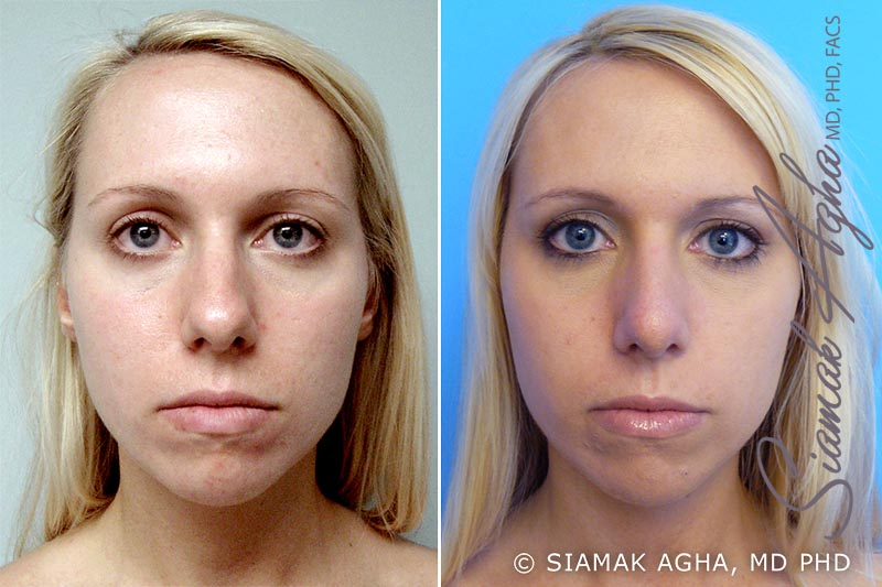 Orange County Newport Beach Rhinoplasty Patient 2
