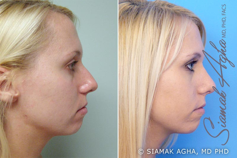Orange County Newport Beach Rhinoplasty 2 Right View