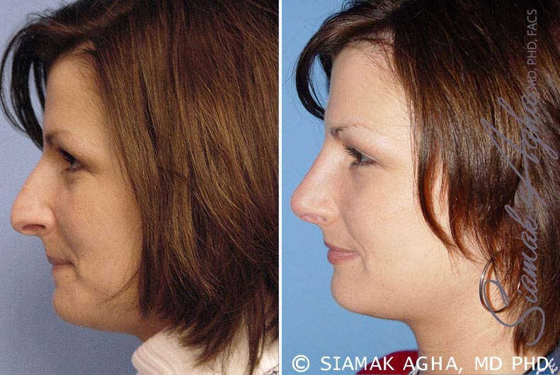 Orange County Newport Beach Rhinoplasty 4 Left View