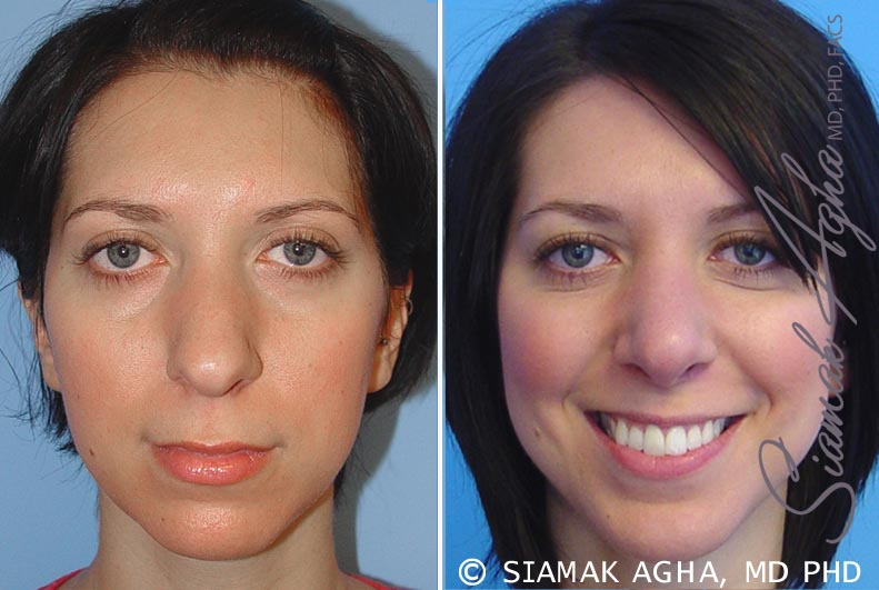 Orange County Newport Beach Rhinoplasty Patient 5