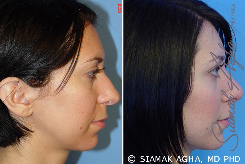 Orange County Newport Beach Rhinoplasty 5 Right View