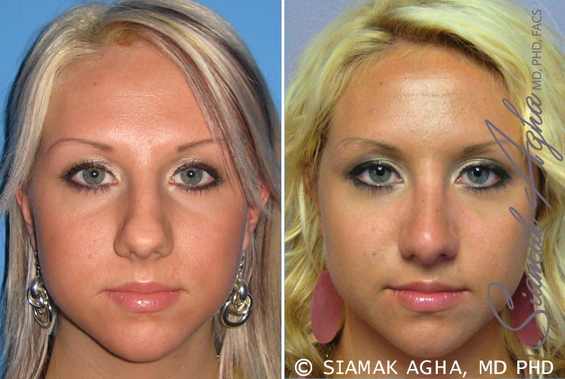 Orange County Newport Beach Rhinoplasty Patient 7