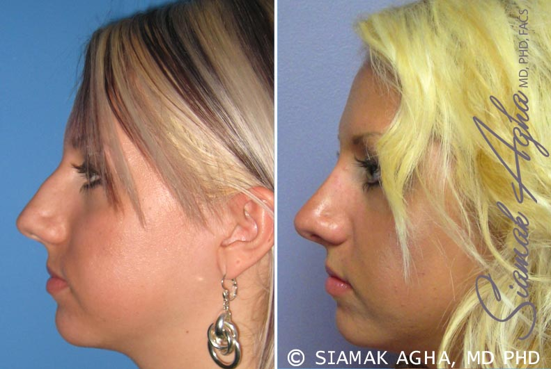 Orange County Newport Beach Rhinoplasty 7 Left View