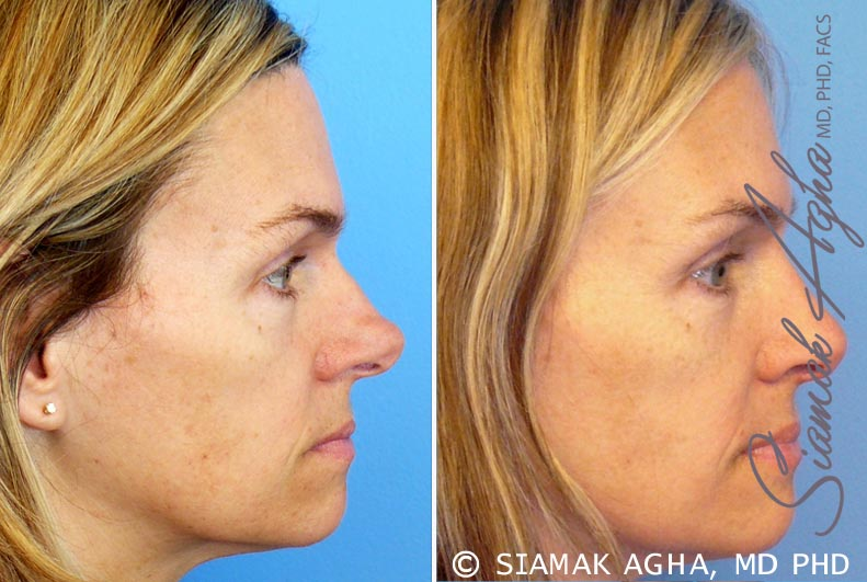 Orange County Newport Beach Rhinoplasty 8 Right View