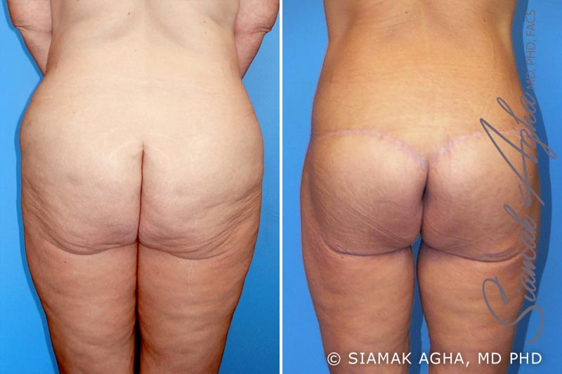 Orange County Newport Beach Spiral Thigh Lift 1 Back View