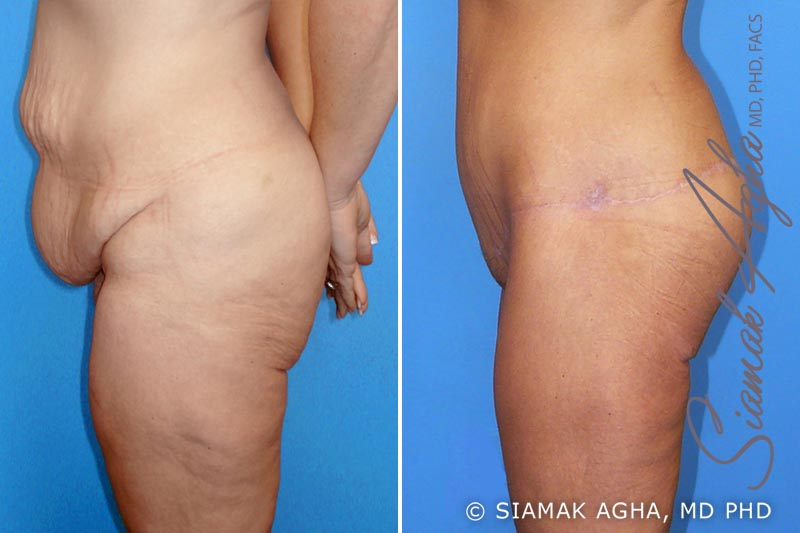 Orange County Newport Beach Spiral Thigh Lift 1 Left View