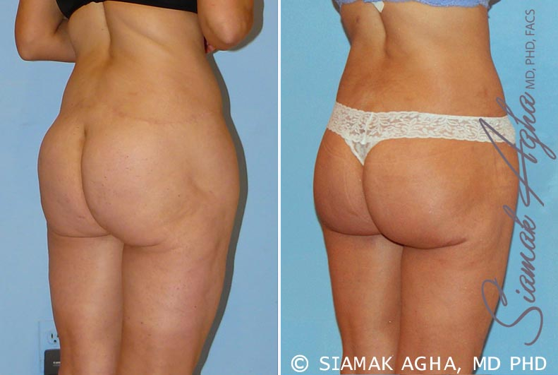 Orange County Newport Beach Spiral Thigh Lift 4 Back Right View