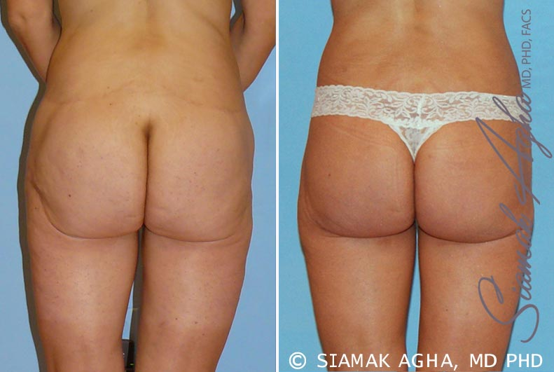 Orange County Newport Beach Spiral Thigh Lift 4 Back View