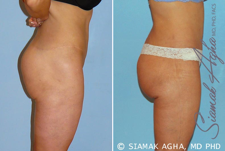 Orange County Newport Beach Spiral Thigh Lift 4 Right View