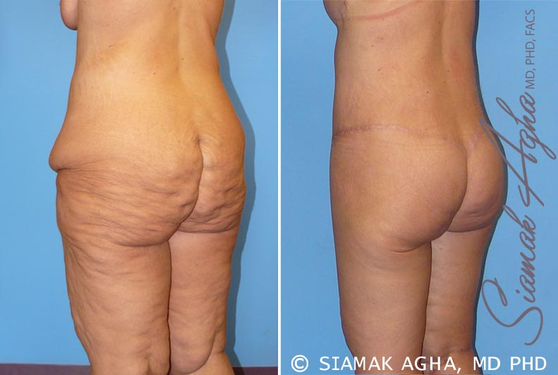Orange County Newport Beach Spiral Thigh Lift 5 Back Left View