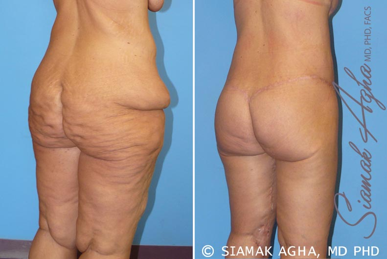 Orange County Newport Beach Spiral Thigh Lift 5 Back Right View