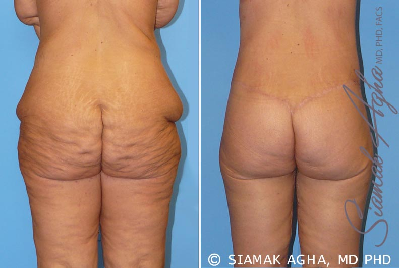 Orange County Newport Beach Spiral Thigh Lift 5 Back View