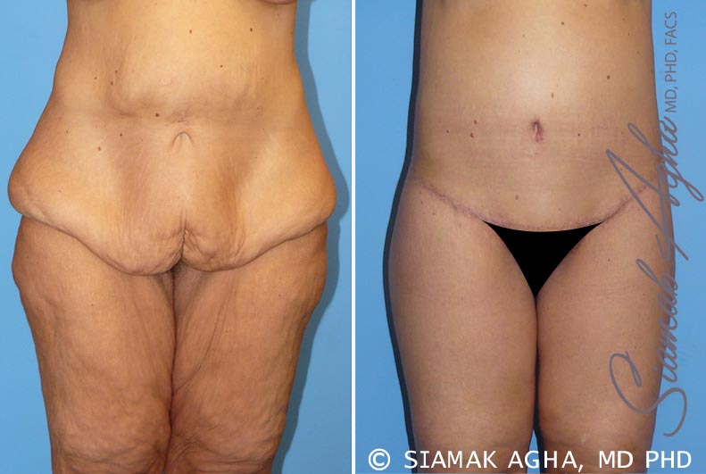 Orange County Newport Beach Spiral Thigh Lift Patient 5