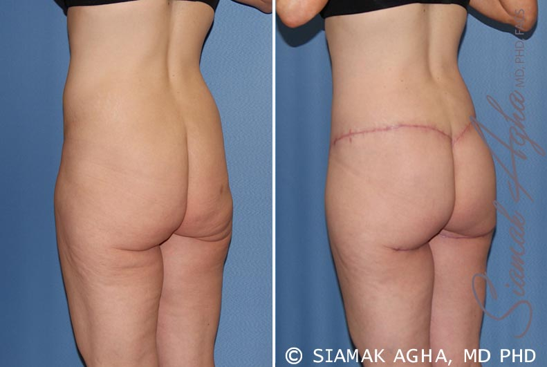 Orange County Newport Beach Spiral Thigh Lift 7 Back Left View