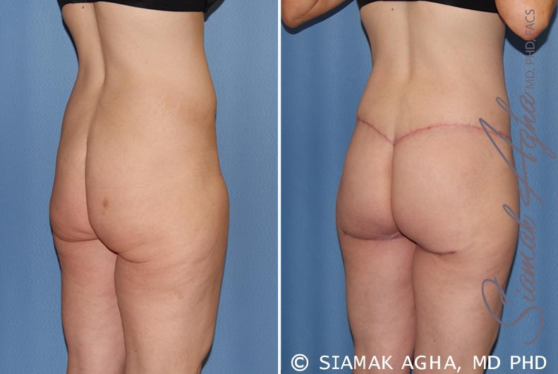 Orange County Newport Beach Spiral Thigh Lift 7 Back Right View