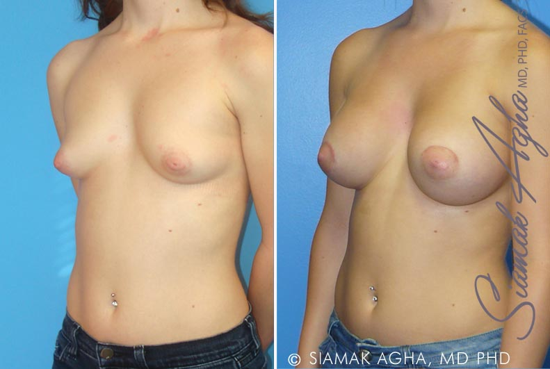Orange County Newport Beach Tubular Breast Correction 1 Front Left View