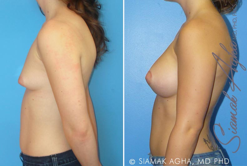 Orange County Newport Beach Tubular Breast Correction 1 Left View