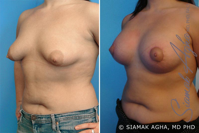 Orange County Newport Beach Tubular Breast Correction 2 Front Left View