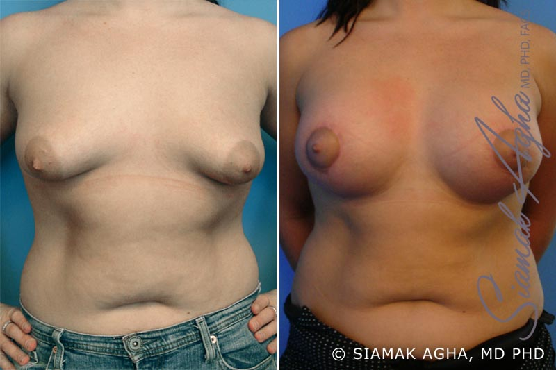 Orange County Newport Beach Tubular Breast Correction 2 Front View