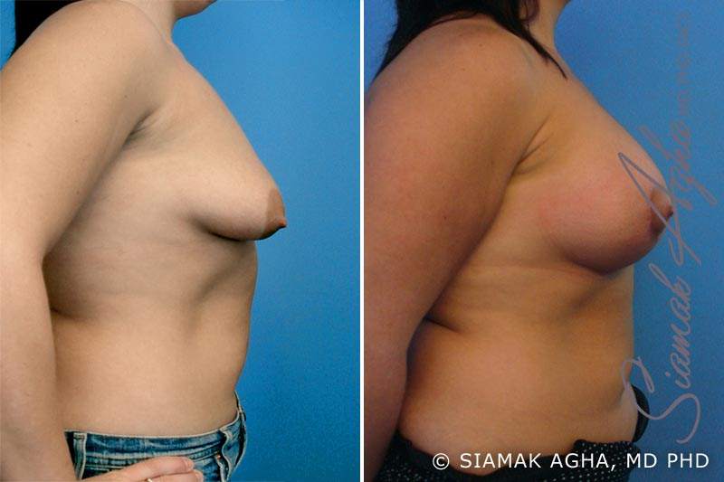 Orange County Newport Beach Tubular Breast Correction 2 Right View