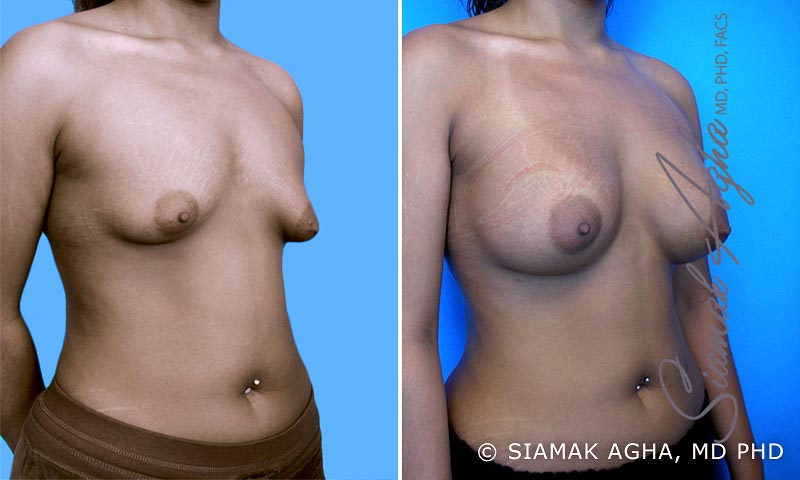 Orange County Newport Beach Tubular Breast Correction 3 Front Right View