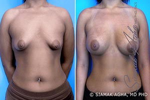 Orange County Newport Beach Tubular Breast Correction Patient 3