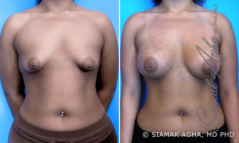 Orange County Newport Beach Tubular Breast Correction 3 Front View