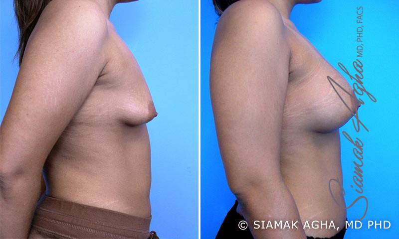 Orange County Newport Beach Tubular Breast Correction 3 Right View