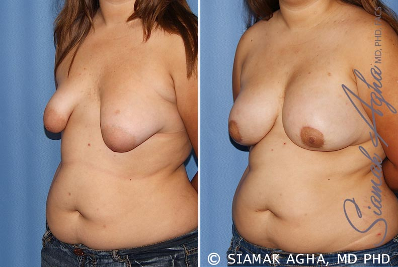 Orange County Newport Beach Tubular Breast Correction 4 Front Left View