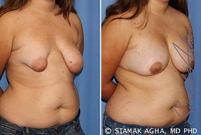 Orange County Newport Beach Tubular Breast Correction 4 Front Right View