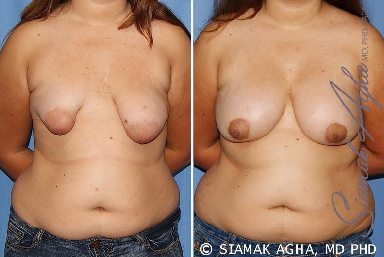 Orange County Newport Beach Tubular Breast Correction Patient 4