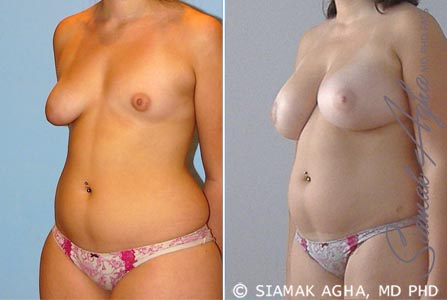 Orange County Newport Beach Tubular Breast Correction 5 Front Left View