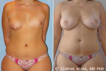 Orange County Newport Beach Tubular Breast Correction 5 Front View