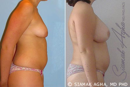 Orange County Newport Beach Tubular Breast Correction 5 Right View