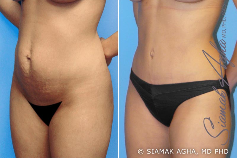 Orange County Newport Beach Tummy Tuck 1 Front Left View