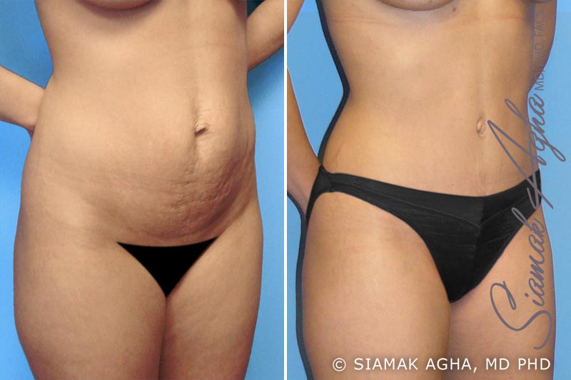 Orange County Newport Beach Tummy Tuck 1 Front Right View