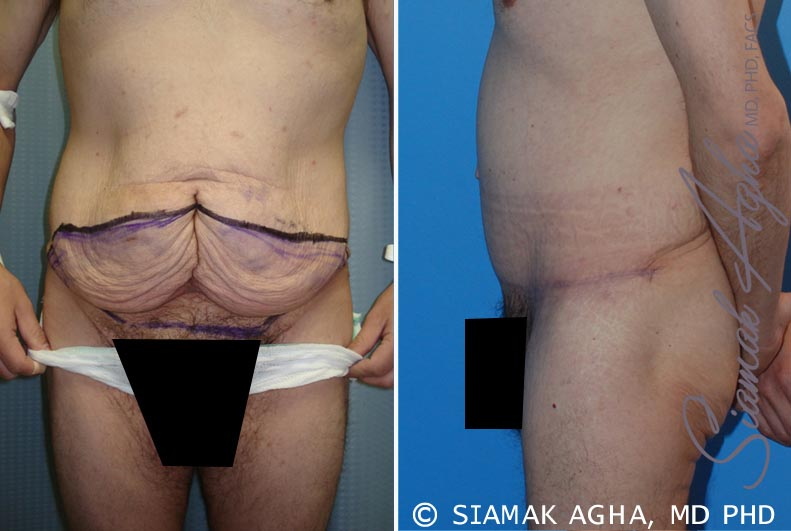 Orange County Newport Beach Tummy Tuck 10 Left View