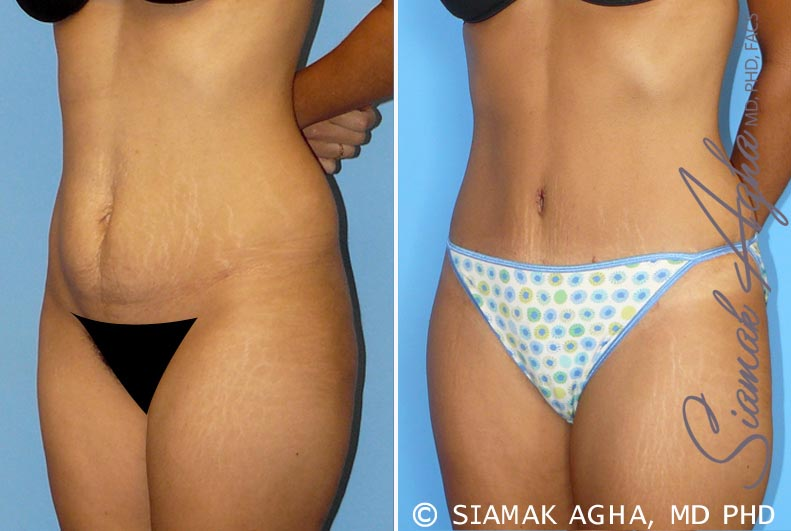 Orange County Newport Beach Tummy Tuck 11 Front Left View