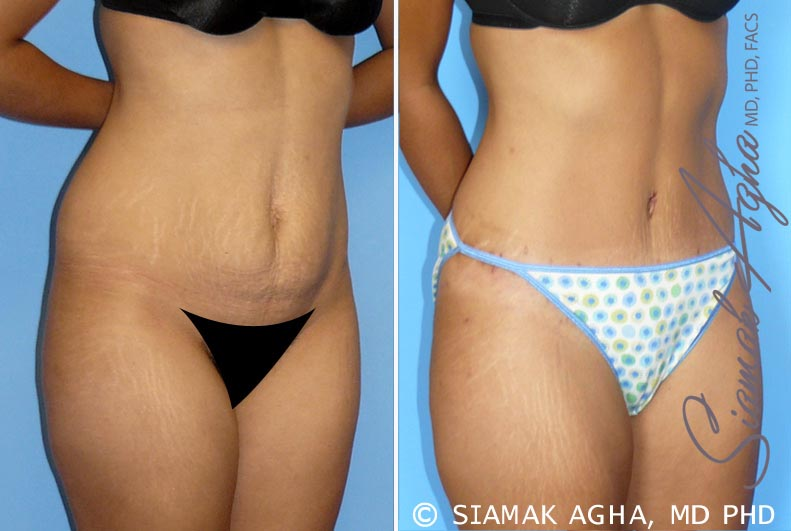 Orange County Newport Beach Tummy Tuck 11 Front Right View