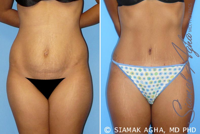 Orange County Newport Beach Tummy Tuck 11 Front View
